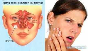 Приины образования кисты в организме