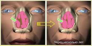 Что такое гиперпластический ринит