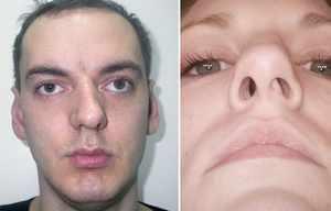 Выпрямление носовой перегородки - до и после