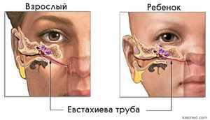 Процедура продувания евстахиевой трубы