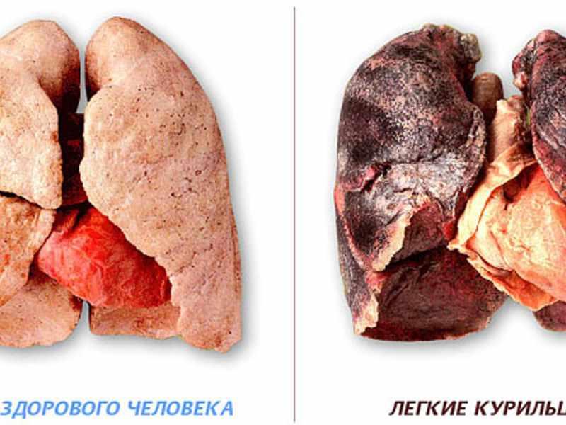 Из-за чего развивается эмфизема легких