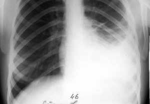 На рентгене туберкулезный плеврит