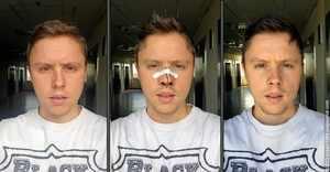 Выпрямление носа - коррекция носовой перегородки