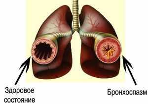 Симптоматика бронхоспазма